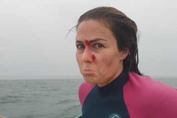 surf injury to the face